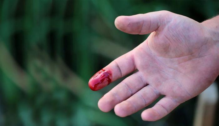 Mơ thấy máu đánh con gì để trúng lớn khi chơi lô đề?