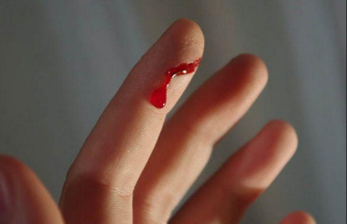 Nếu trong mơ bạn nhìn thấy người yêu bị đứt tay thì hãy bình tĩnh hơn trong mọi việc nhé